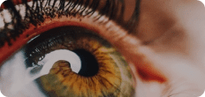adult myopia