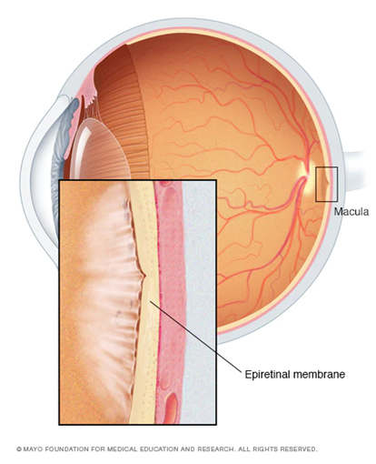 Structure of the eye showing an epiretinal membrane