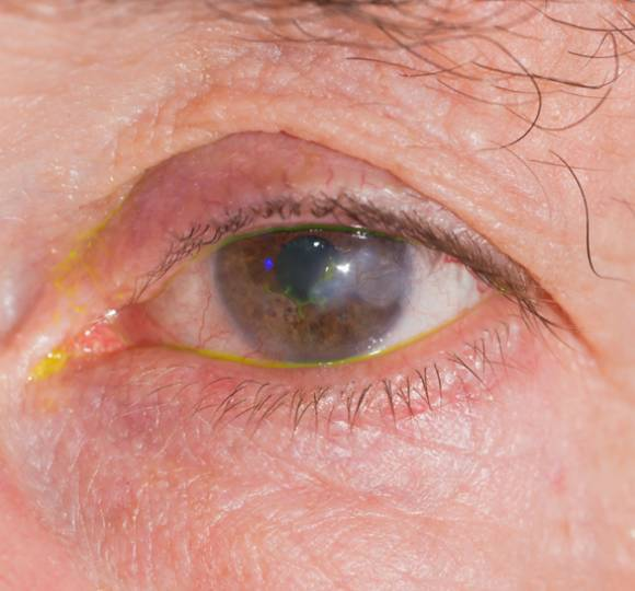 Eye with herpes simplex keratitis