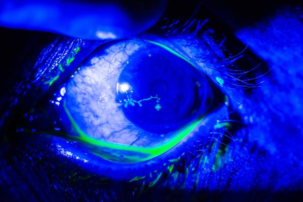 Fluorescein-stained eye showing branch-like pattern characteristic of herpes simplex keratitis
