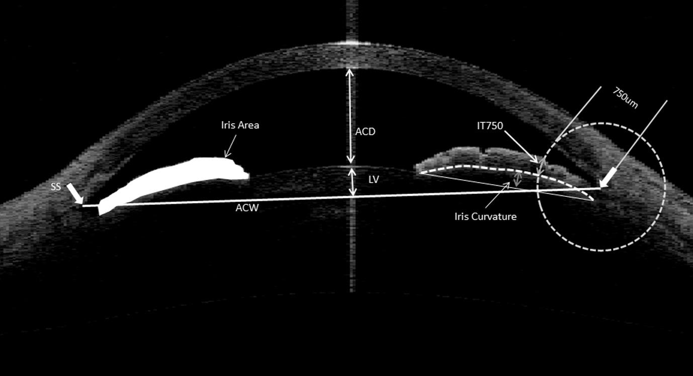 angle-closure-glaucoma