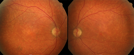 macular-dystrophies